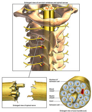 Avulsion of Spinal Nerves Supplying the Brachial Plexus