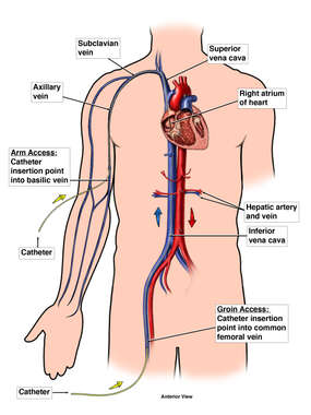Pathways of Venous Catheters