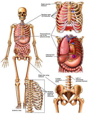 Skeletal Figure with Injuries to the Chest Wall, Thorax and Pelvis
