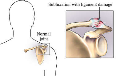 Acromioclavicular Ligaments Torn