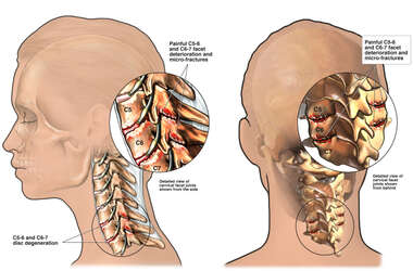 Female Head and Neck with Post-accident Facet Syndrome and Chronic Neck Pain