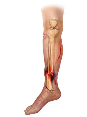 Tibia and Fibular Fracture