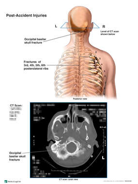 Posterior Male Skeletal Torso with Post-Accident Brain and Thoracic Injuries