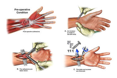 Painful Left Wrist Hardware and Surrounding Adhesions with Removal of Hardware and Tenolysis