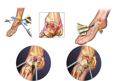 Additional Right Ankle Problems and Surgical Repairs
