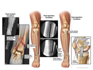Comminuted Fractures of the Right Lower Leg with Surgical Fixation