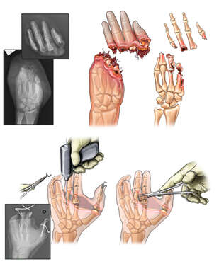 Amputation of Left Thumb and Multiple Fingers with Surgical Replantation