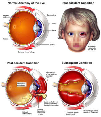 Traumatic Rupture of the Left Eye with Retinal Detachment