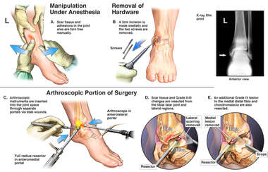 Additional Left Ankle Repairs