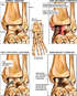 Progression of Talar Fracture