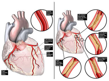 Normal Heart versus Heart with Coronary Artery Disease