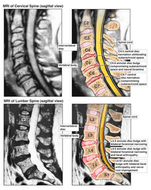 Film Colorization of Post-accident Cervical and Lumbar Spinal Disc Injuries