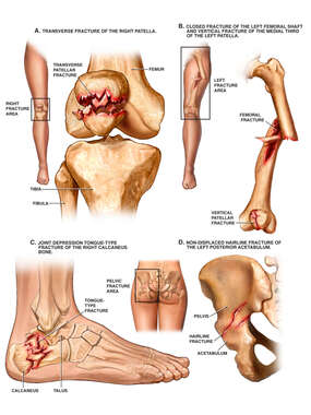 Lower Extremity Fractures to the Femur, Knee, Ankle and Hip