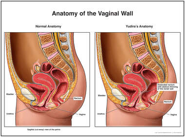 Anatomy of the Vaginal Wall
