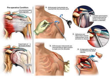 Left Shoulder Injuries with Surgical Repair