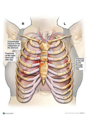 Traumatic Chest Injuries