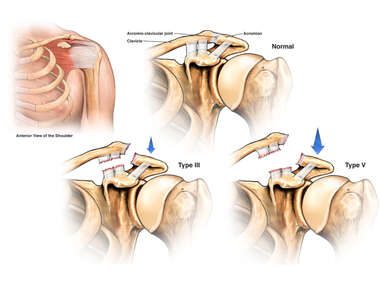 Normal Anatomy of the Acromiooclavicular Joint versus Acute Shoulder Injuries (Type III and Type V Joint Dislocation)