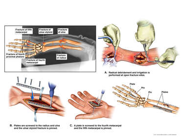Left Forearm, Wrist and Hand Fractures with Surgical Fixation