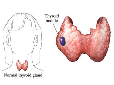 Thyroid Nodule