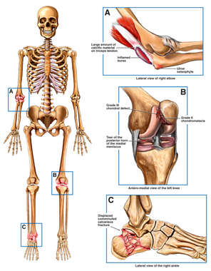 Skeletal Figure with Post-accident Injuries to the Right Elbow Left Knee and Right Foot