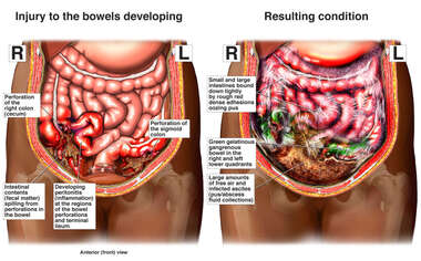 Intra-operative Bowel Injuries with Subsequent Peritonitis