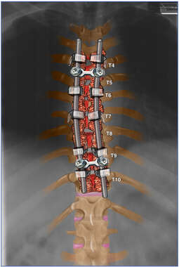 Thoracolumbar Spinal Fusion