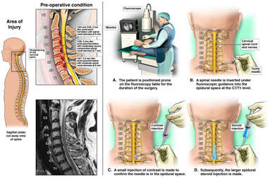 disc protrusion/herniation with moderate spinal canal stenosis