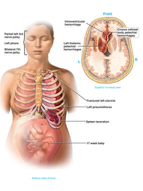 Female Figure Traumatic Post-accident Thoracic and Brain Injuries