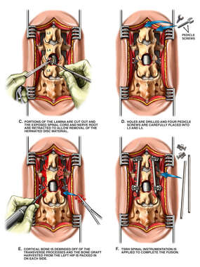 Lumbar Laminectomy, Discectomy and Fusion Procedure