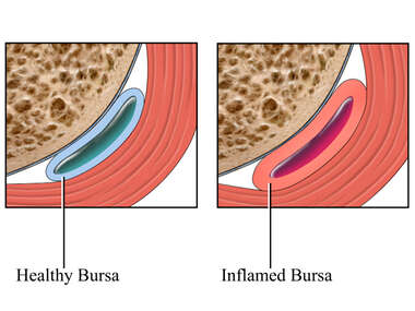 Cut-away View of Inflamed Bursa