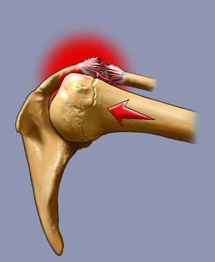 Shoulder Joint with Ligament Damage, Lateral View