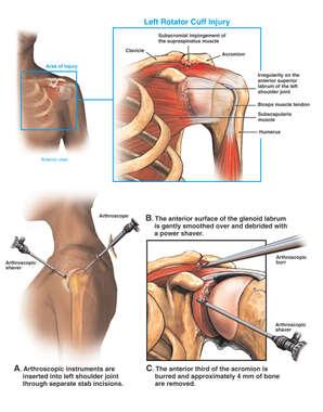 Left Shoulder Injury of the Rotator Cuff with Arthroscopic Repair of the Glenoid Labrum