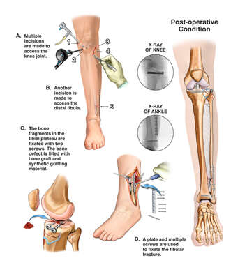 Left Leg Surgical Fixation