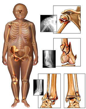 Female Figure with Post-accident Fractures to the Right Shoulder, Knee and Ankles Bilaterally