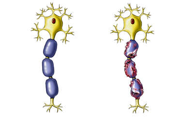 Neuron with Schwann Cell Covering
