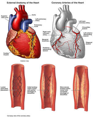 Progression of Stenosis Formation at Stent Placement Site