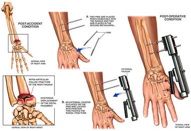 Post-accident Wrist Fracture with Application of External Fixator