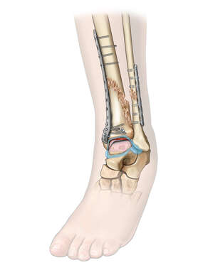 Partial Ankle Synovectomy