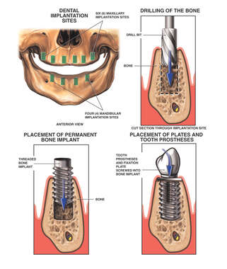 Dental Implant Procedure