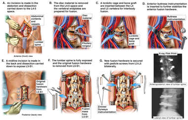 Anterior Posterior Lumbar Discectomy and Fusion