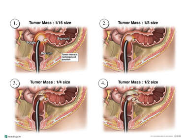 Search: lymphatics and vasculature of the rectosigmoid colon with ...
