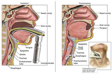 Intubation and Tracheostomy