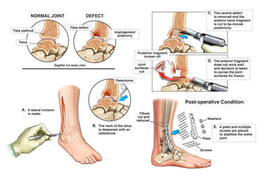 Attempted Surgical Repair of the Ankle with Conversion to Surgical Fusion