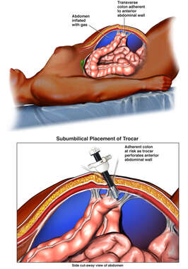 Laparoscopic Trocar Insertion