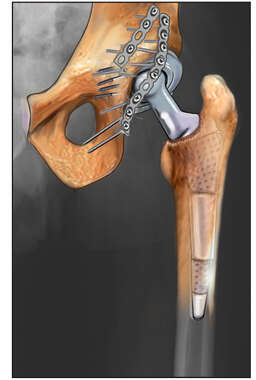 Hip Replacement Prosthetic: X-ray Interpretation