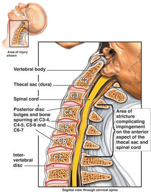 C3 to C7 Multilevel Cervical Spine Injury