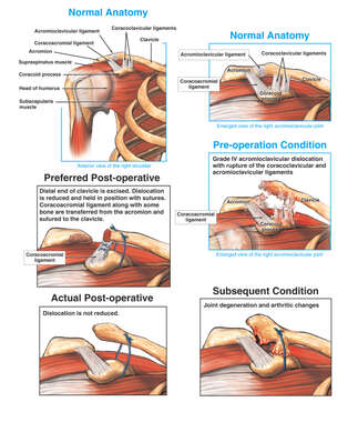Shoulder Dislocation of the Acromioclavicular Joint with Surgical Repairs