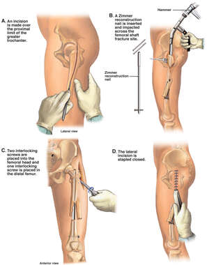 Surgical Fixation Procedure of the Femur with Placement of an Intramedullary Rod