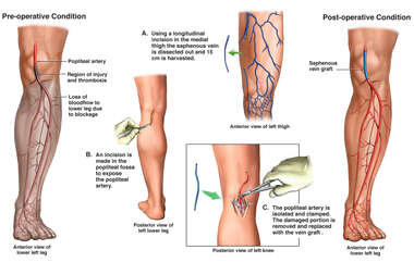 Popliteal Artery Injury with Surgical Bypass Grafting