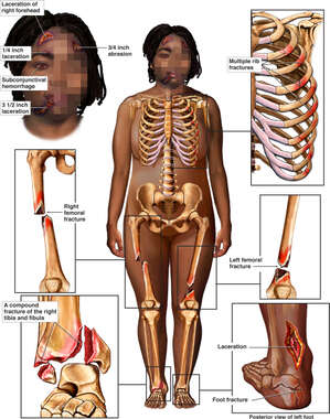 Black Female Skeletal Figure with Post-accident Injuries to the Scalp, Face, Thorax, and Bilateral Lower Extremities